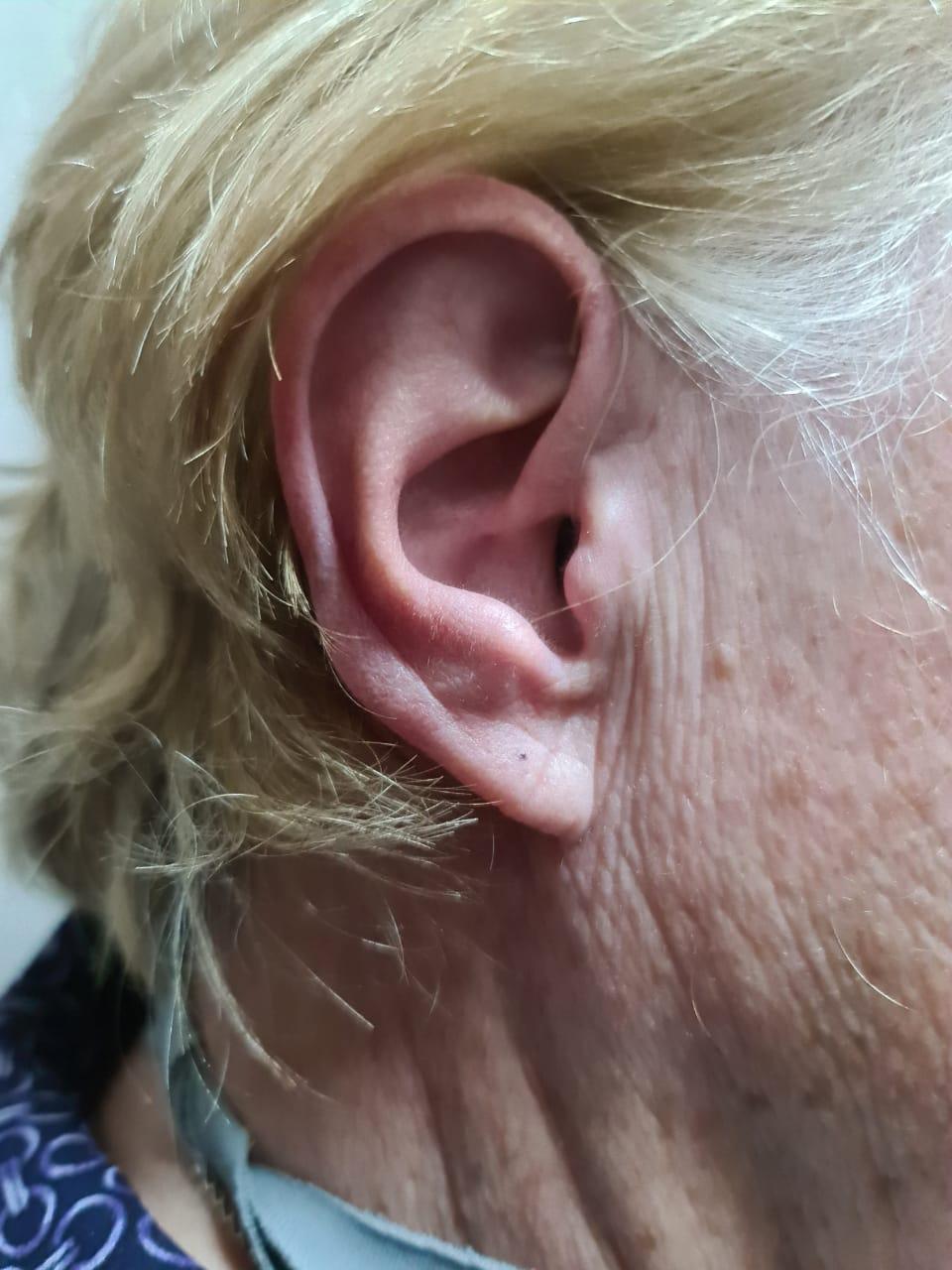 Hearing aid lady ear